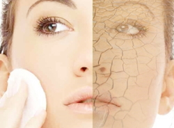 dry-skin1